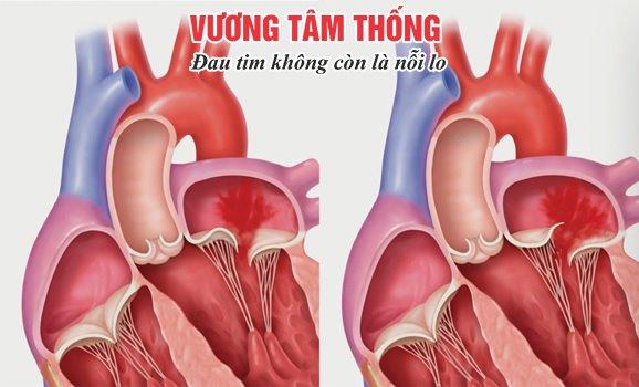 Hở van tim – Bệnh tim phổ biến với nhiều biến chứng nguy hiểm